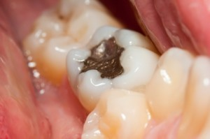 Mercury free dental care