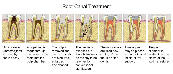 root-canal-treatment-graphic