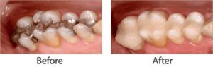 amalgam-removal-300x95