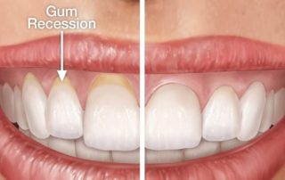 gum rejuvenation