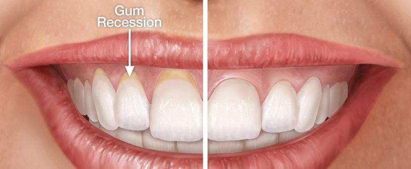 gum rejuvenation