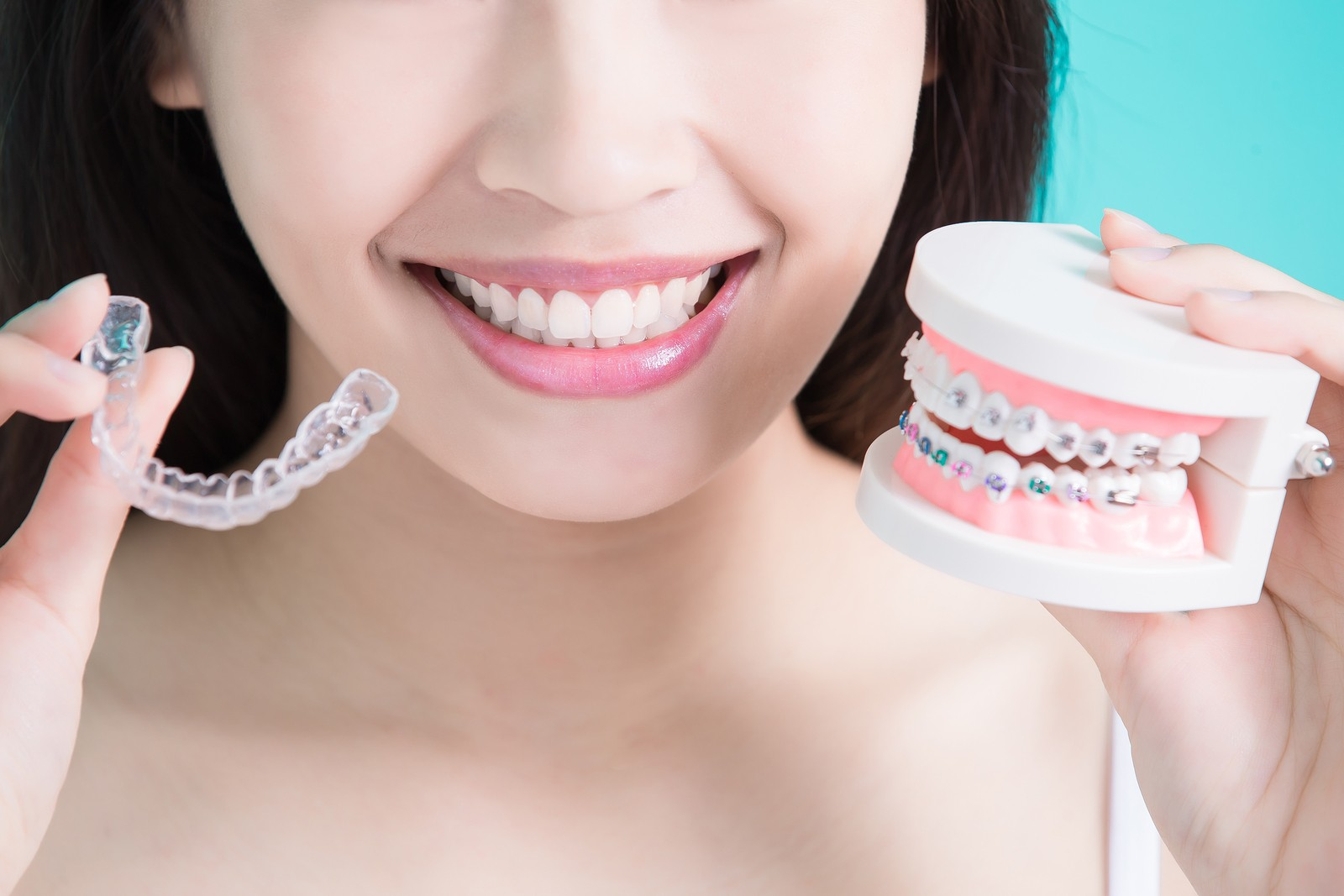 Invisalign - An Attractive Alternative to Braces