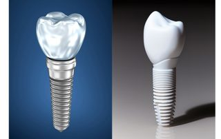 zirconia implants nyc