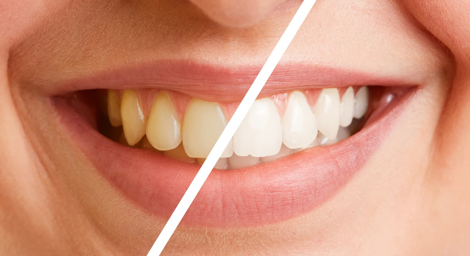 Deep Teeth Bleaching | Creating Brighter Smiles and Happier Patients