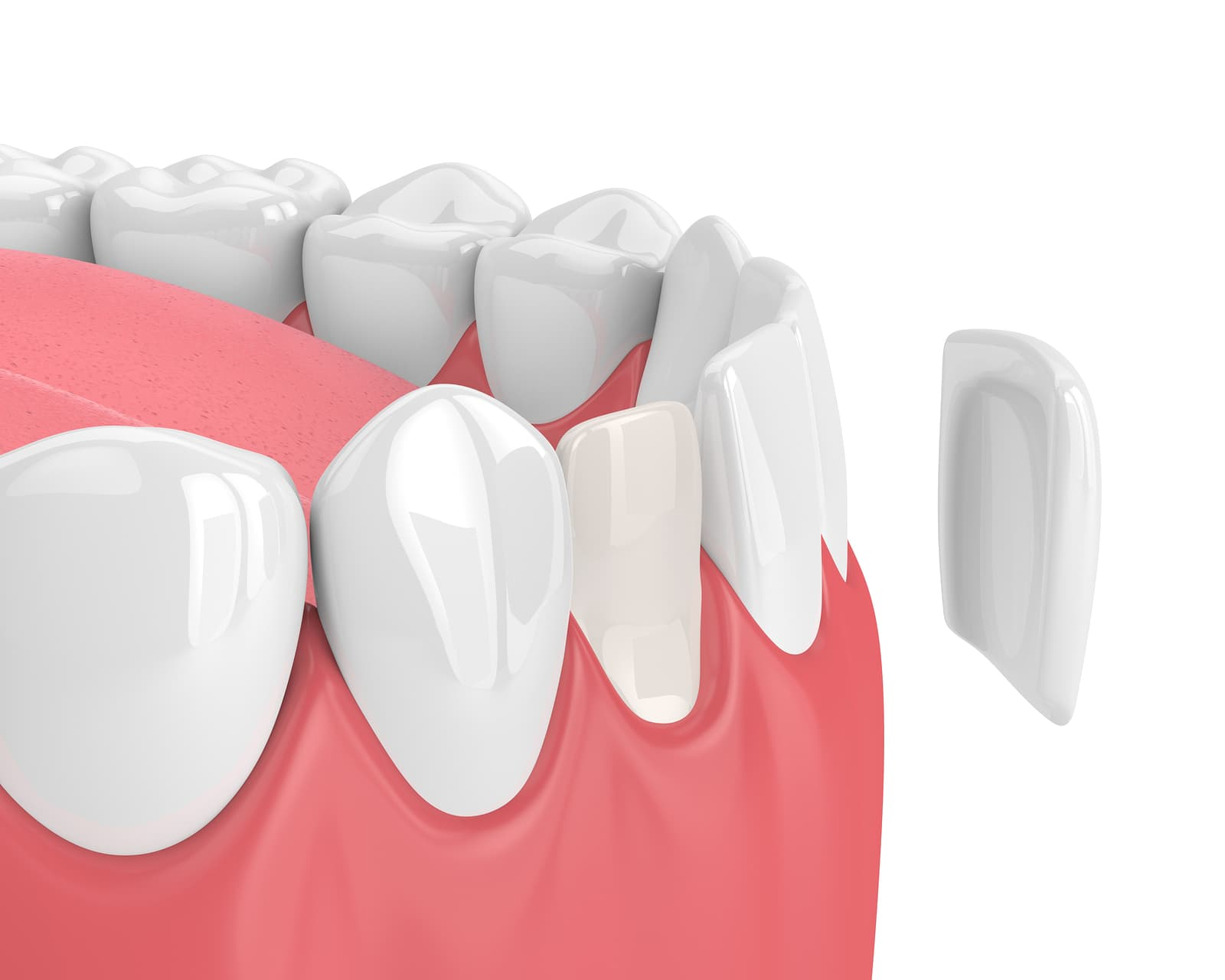 bigstock-D-Render-Of-Teeth-With-Veneer-240002497