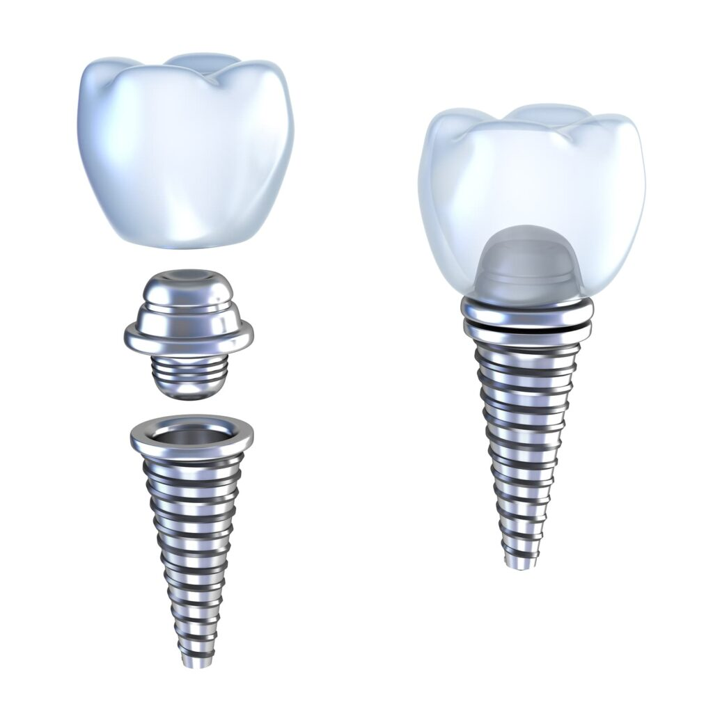 bigstock-Dental-implant-d-crown-with-p-14220674-1024x1009
