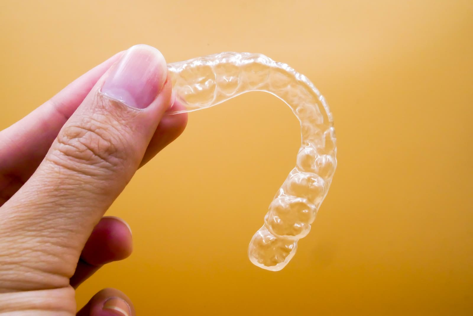 Invisalign - The Holistic Approach for Straighter Teeth