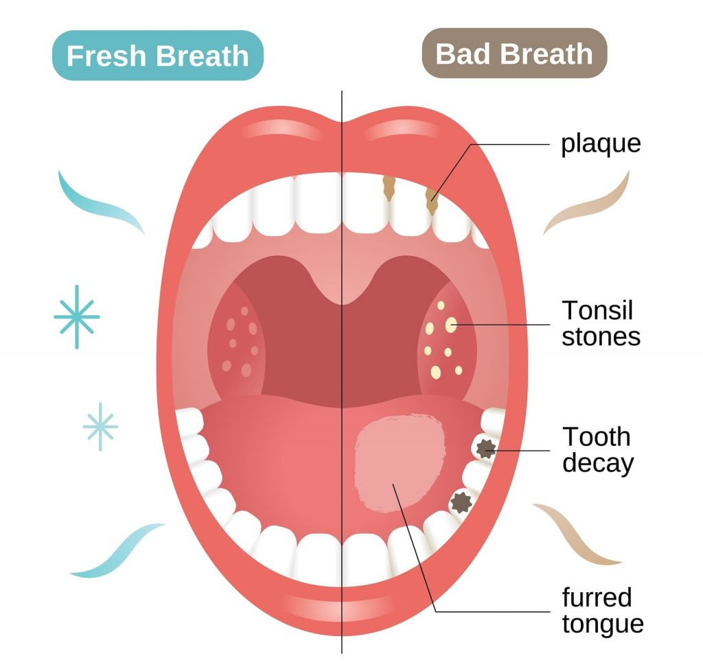 bigstock-Bad-And-Fresh-Breath-Before-An-315102247-1024x975