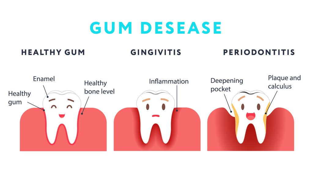 bigstock-Step-Of-Gum-Disease-Healthy-T-192389026-1024x640